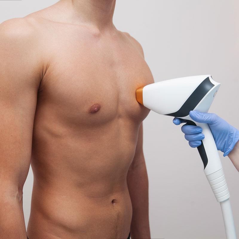 Poitrine homme sans poils après épilation lumière pulsée
